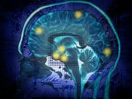 brain 1001